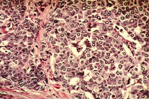 Breast cancer cells. Photo by Cecil Fox, National Cancer Institute.