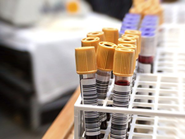 New Tests to Improve Decision Making in Prostate Cancer Treatment