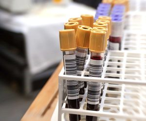 The idea of liquid biopsy for cancer diagnosis and treatment is gaining in popularity.