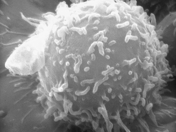 Electron microscopic image of a single human lymphocyte. Nivolumab works by releasing the PD-1/PD-L1 brake on cancer-fighting immune cells called T cells, or T lymphocytes.