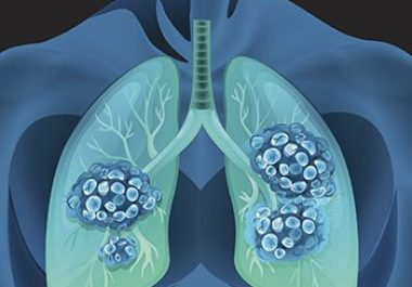 Advancing Lung Cancer Research
