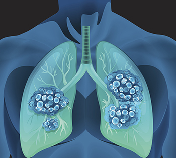 About 250 physicians, researchers, and patient advocates will convene in San Diego starting today for the Fourth AACR-IASLC International Joint Conference: Lung Cancer Translational Science from the Bench to the Clinic.
