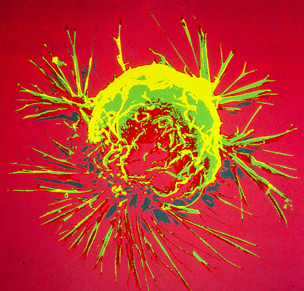 Breast cancer cell. Photo source: National Cancer Institute.