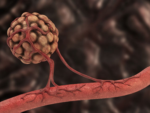 Cabozantinib impedes the growth of the blood vessel networks that tumors establish in order to grow and survive.