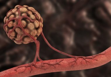 A New Treatment Option for Advanced Kidney Cancer