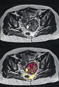 MRI of ovarian cancer