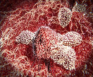 Natural killer cells are a type of lymphocytes which destroy cancer cells and other altered cells releasing cytotoxic granules.