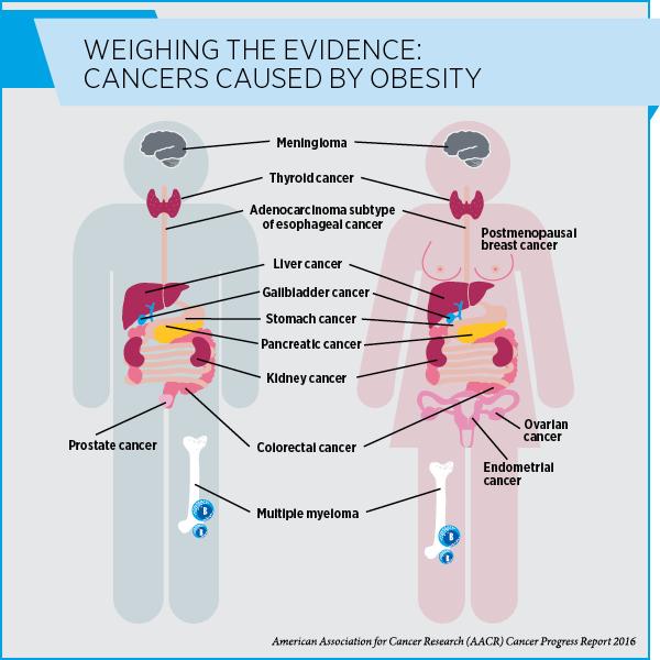 1610028_catalyst_obesity_blog_600w
