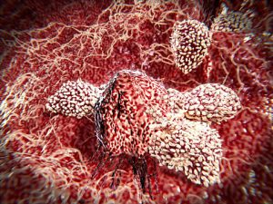 T-lymphocytes attacking cancer cell