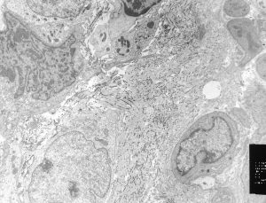 nci-vol-2136-150-tissue-image