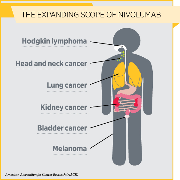 Use Of Nivolumab Expanded To Sixth Cancer Type Cancer