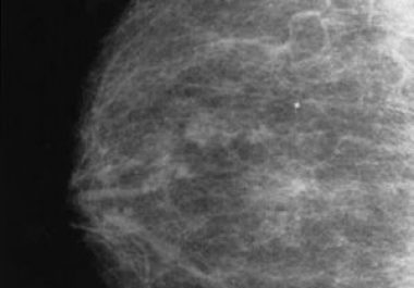 Mammography Screening: Benefits and Potential Risks