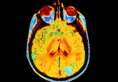 What Advances are Researchers Making in Treating Glioblastoma, McCain's Cancer?
