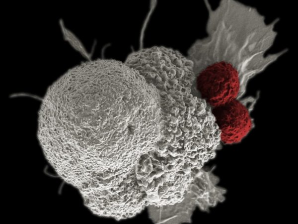 How Does Lung Cancer Evade the Immune System?