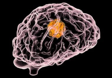 Treating Melanoma Brain Metastases With Immunotherapy