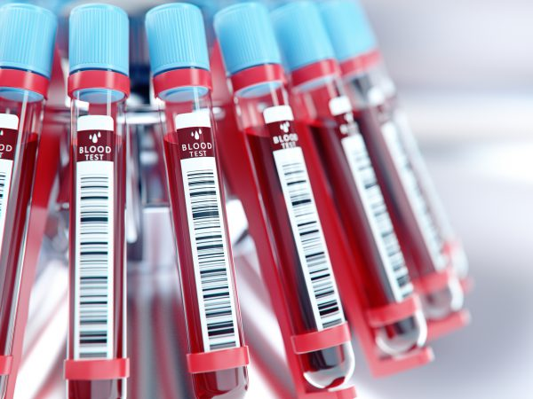 How Liquid Biopsies Can Complement Tissue Biopsies