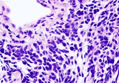 Expanding Immunotherapy to Small Cell Lung Cancer