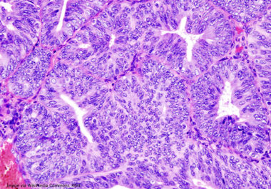 Immunotherapy-Targeted Therapy Combination Treatment for Endometrial Cancer