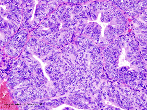 endometrial cancer cells