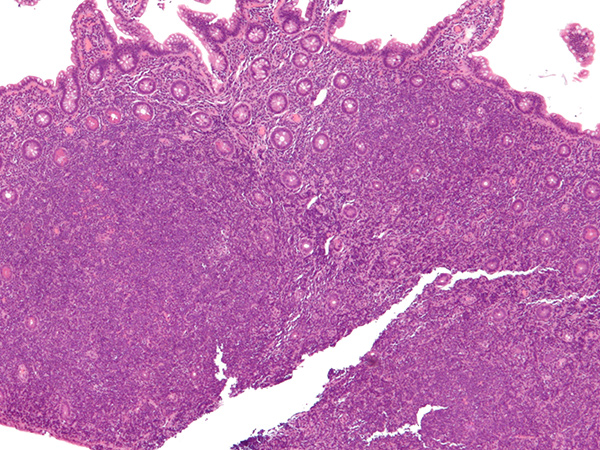 Mantle cell lymphoma