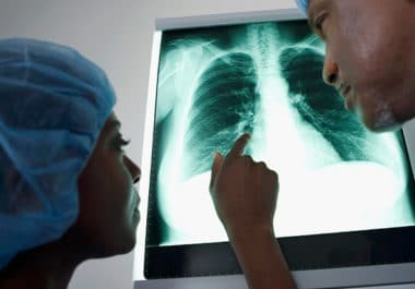 Predicting Which Lung Nodules Will Progress to Cancer
