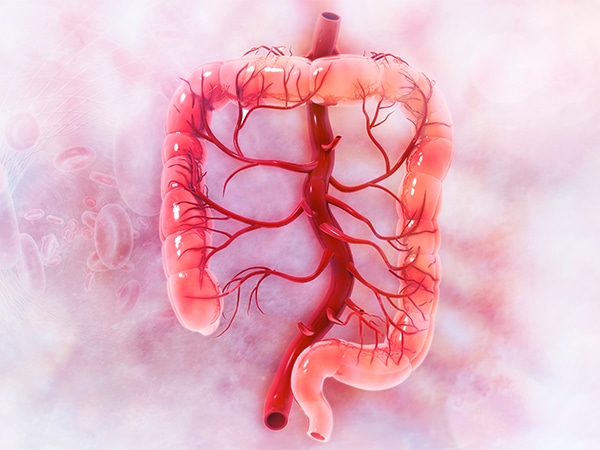 Colorectal Cancer: Preventive Measures, a New Treatment Approach, and Mortality Disparities