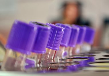 Tests Spot Signs of Cancer in the Blood