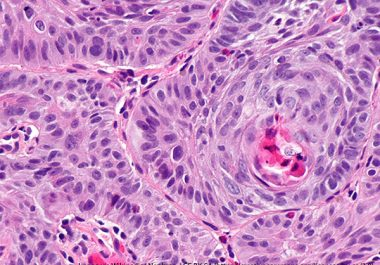 Taking the Brakes Off Immune Cells to Treat Esophageal Cancer