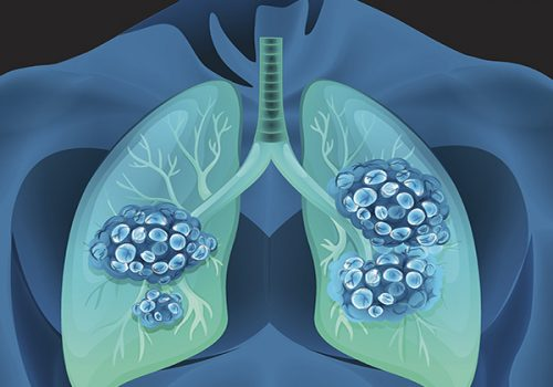 A Look at FDA Approvals for the Treatment of Lung Cancer in 2020