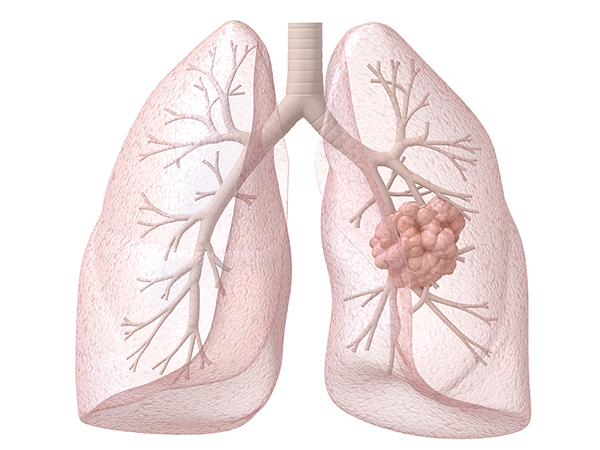 pink lungs