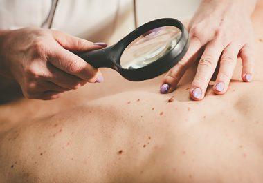 Categorizing Skin Cancer