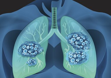 Collaborations for Smoking Cessation: The 2019 AACR-Johnson & Johnson Lung Cancer Innovation Science Grants